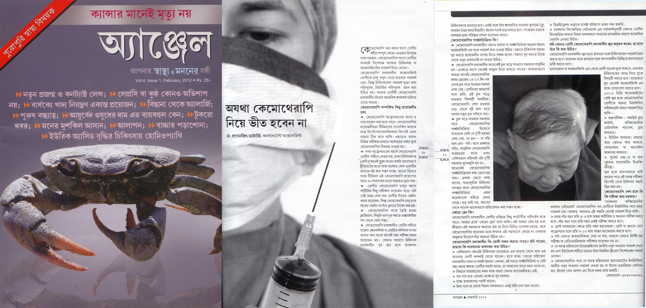 Radiotherapy At DD- Bangla Channels
